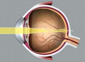 cilinder astigmatisme